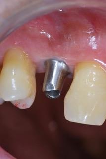 相模原 歯医者 歯科 横浜 虫歯 歯周病 審美歯科 入れ歯 インプラント 小児歯科 予防歯科 口腔外科