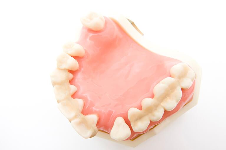 自覚症状がないまま進行するため、歯科医院での検診が大切です